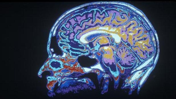 Popular Brain Enhancement Drugs that Actually Work