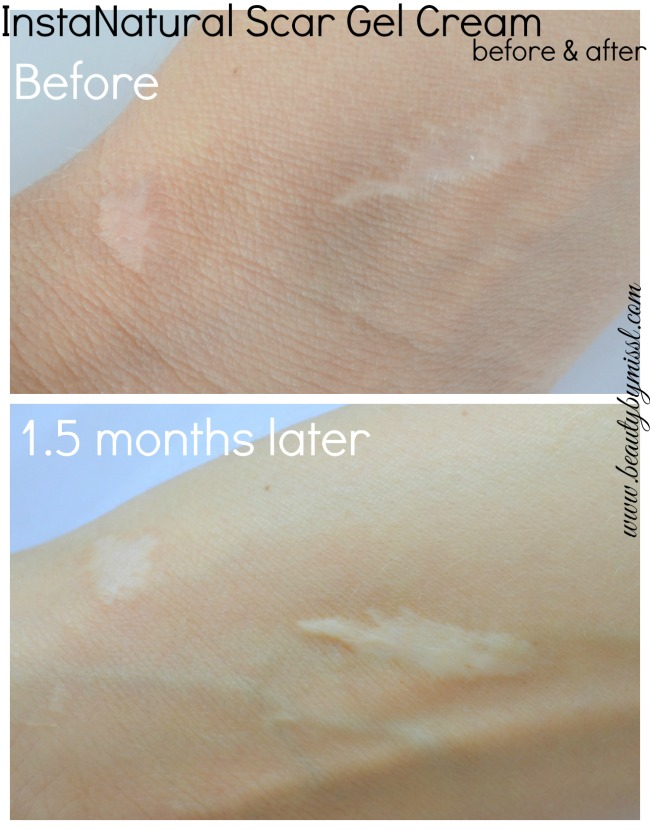 InstaNatural Scar Gel Cream before and after