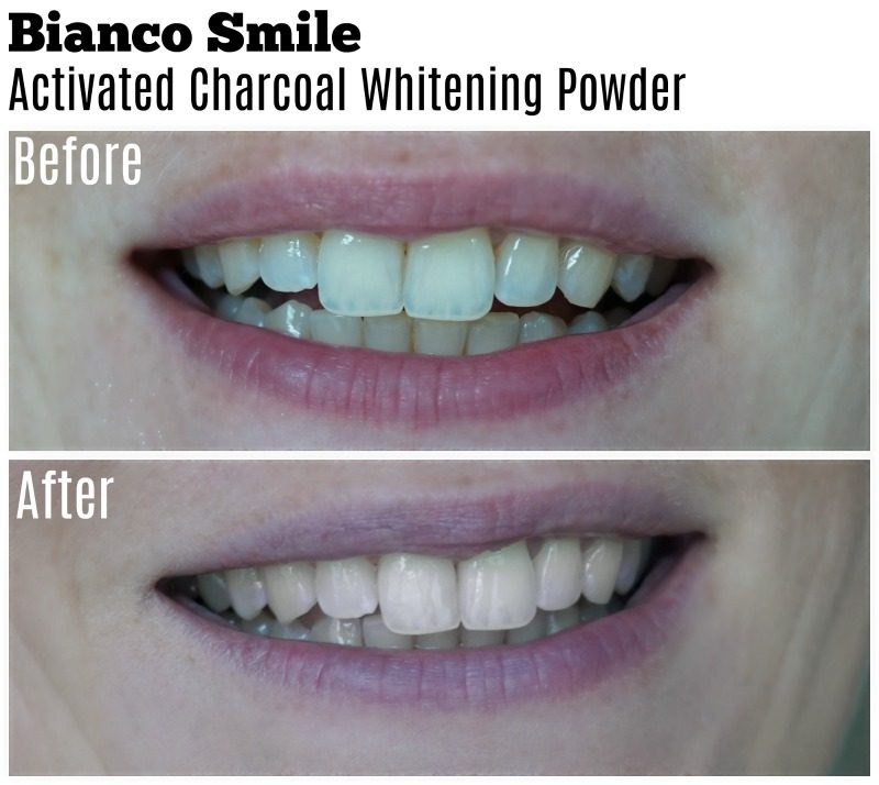 Bianco Smile before after