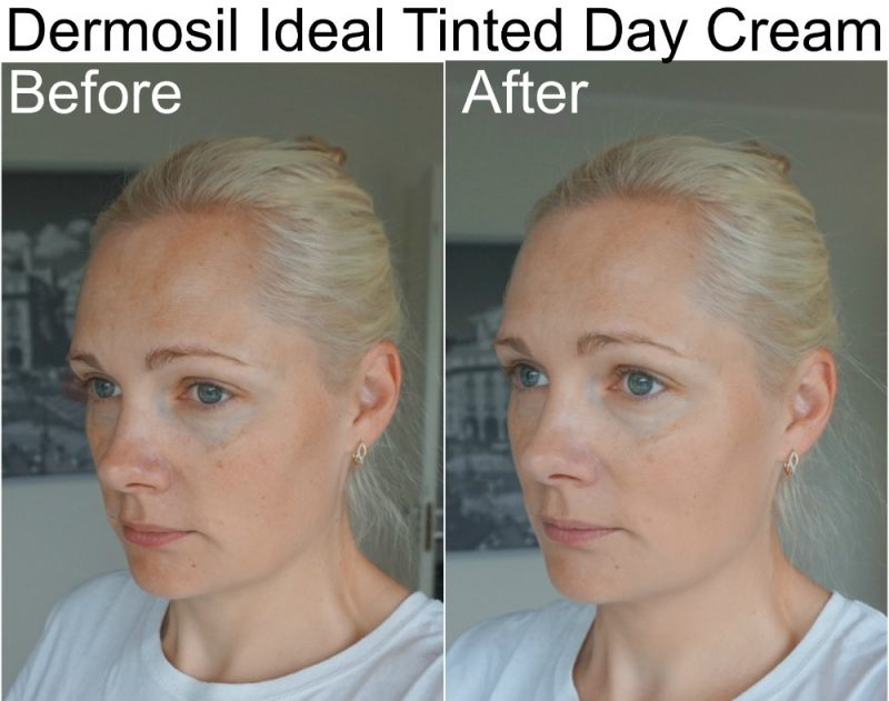 Dermosil Ideal tinted day cream before after