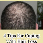 4 Tips For Coping With Hair Loss
